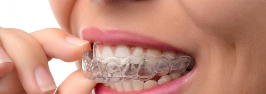 Dental Implants, Prosthetics, Crowns, Bridges I'm lost!