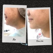 liposuction (various areas)