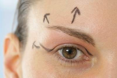 Asian Blepharoplasty
