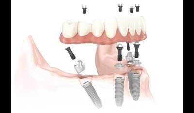 All-on-6 Dental Implant