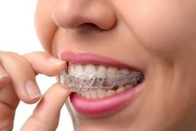 Dental Braces Hungary