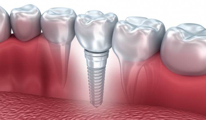 Implant Nobel Biocare Portugal
