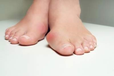 Bunion Surgery/hallux valgus