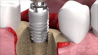Dental Implant Portugal