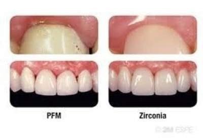 Couronne dentaire (porcelaine/zirconium) sur implant