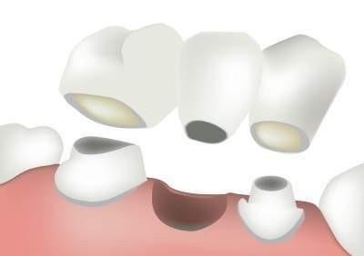 Zahnkrone (Porzellan/Zirkonium)