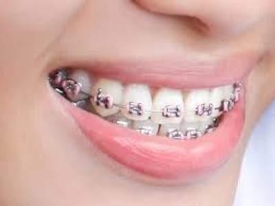 Зубная скобка/Damon