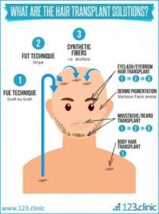 Greffe de poils sur des zones corporelles