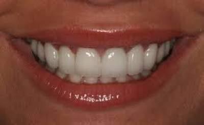 Facettes dentaires Emax