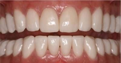 Cerec Veneer Portugal