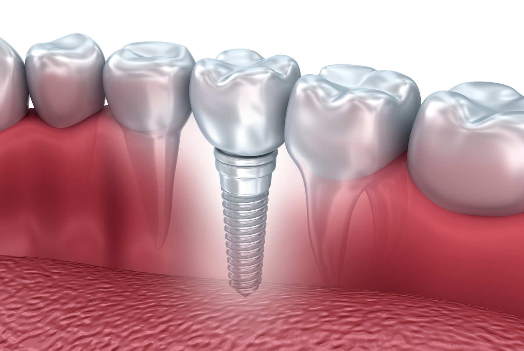 dental implant cost guide per country