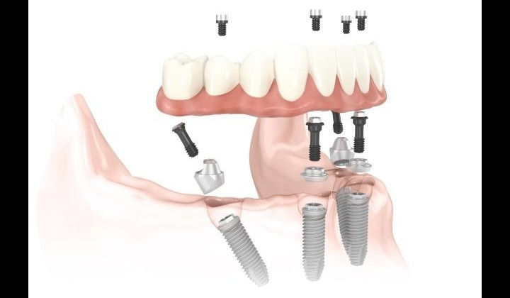 all-on-4-implant