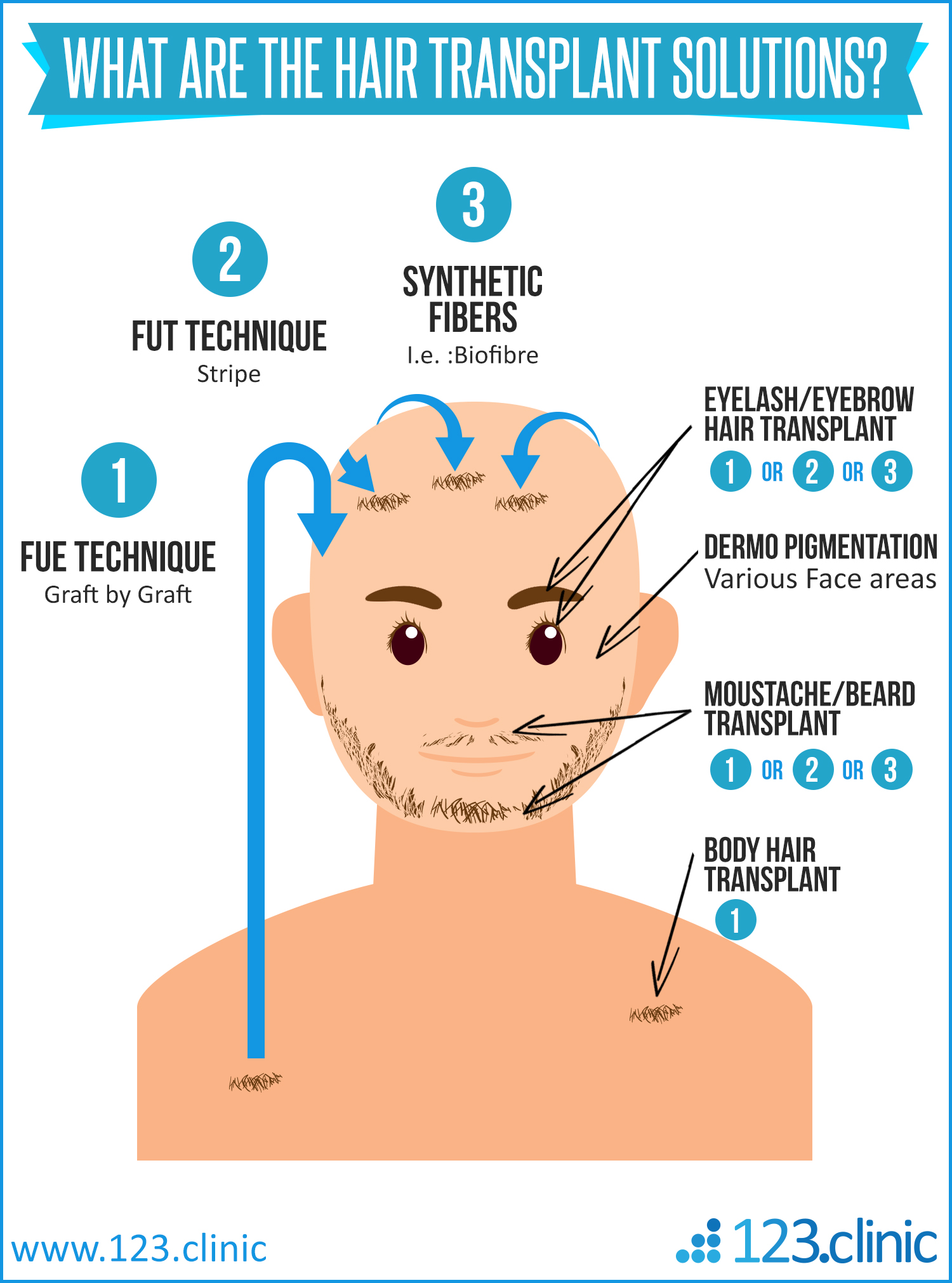 hair-transplant-hair-implant-biofibre-123.clinic